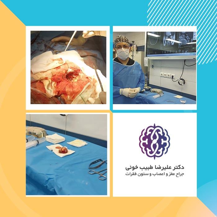 جراحی تومور مغزی مننژیوم بسیار بزرگ + ویدیو جراحی