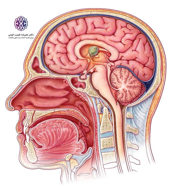 کلوئید کیست مغزی
