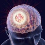 متاستاز مغزی چیست