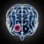 چرا گاهی نمیتوان تمام یک تومور مغزی را خارج کرد؟