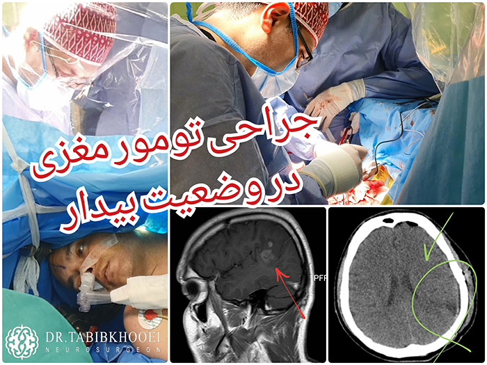 جراحی تومورهای مغزی در وضعیت بیدار و بدون بیهوشی